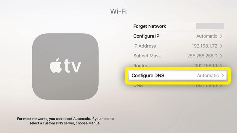 seleziona Configure DNS