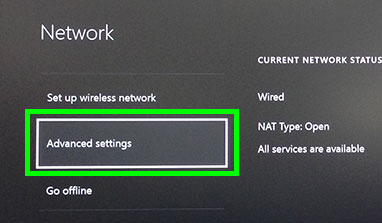 xbox one and vlc how to set up
